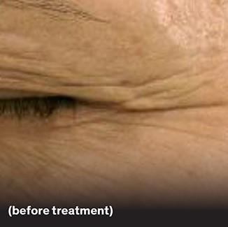 Eye wrinkles prior to agecap™ smooth treatment