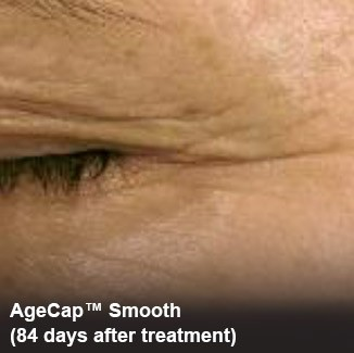 Eye wrinkles 84 days after agecap™ smooth treatment